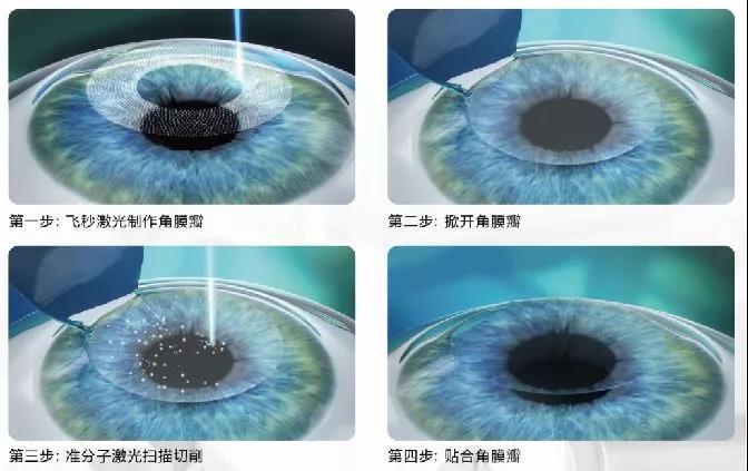 做完近视手术会有干眼症吗?