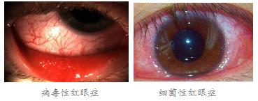 眼睛红、痛是什么原因造成?