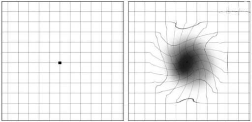 眼睛看东西变形、视物中央有黑点是怎么回事?