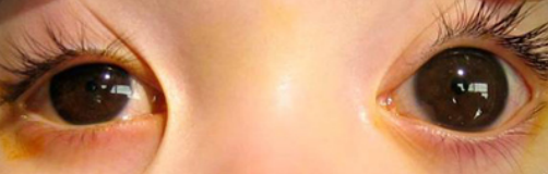 云南哪里可以治疗先天性青光眼