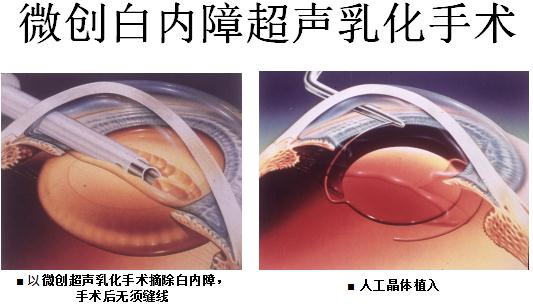 高度近视和白内障可以一起做手术吗?