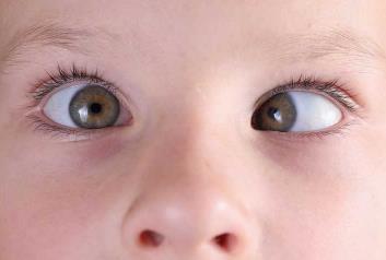 昆明哪里治疗儿童斜视效果好?
