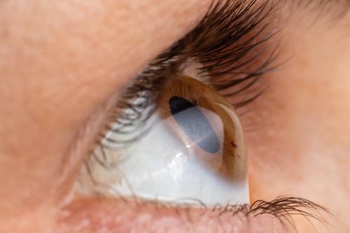 圆锥角膜症状有哪些?怎么治疗