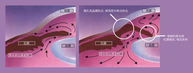 急性青光眼和慢性青光眼的区别