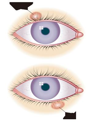 云南哪家眼科医院做icl手术效果好?