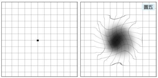 视物变形,视力模糊是什么原因造成的?