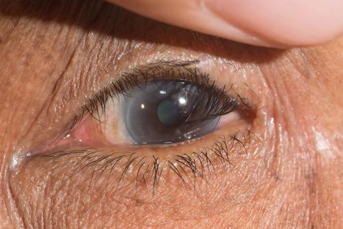 睫毛往眼睛里面长是怎么回事?