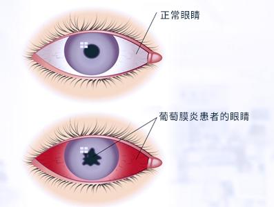 葡萄膜炎与正常人的眼睛有什么不同