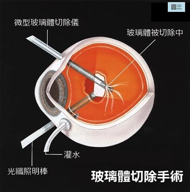 黄斑前膜手术