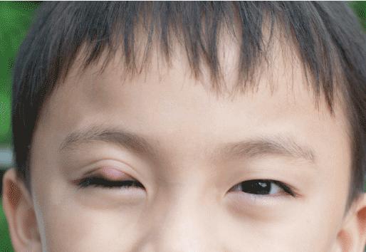 小孩患有麦粒肿眼病