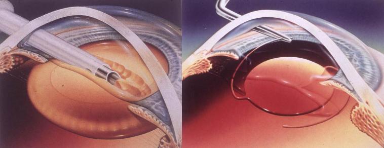 微创超声乳化手术过程