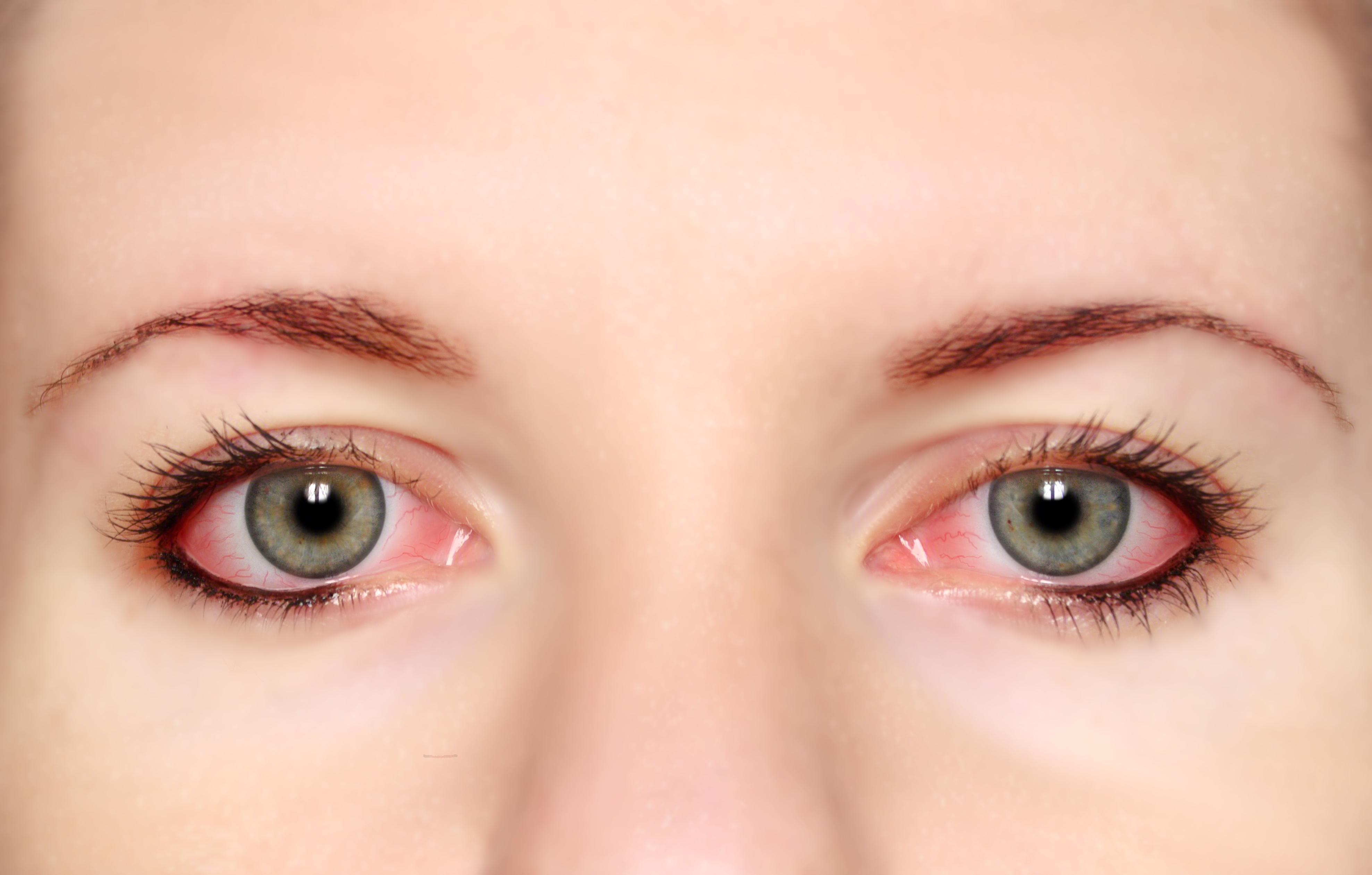 红眼病患者图片