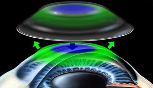 角膜塑形镜又称OK镜