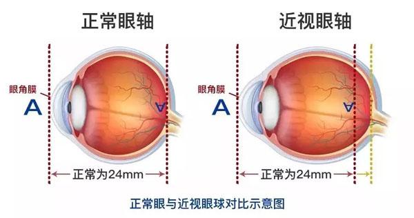 近视眼与正常人的眼睛对比图